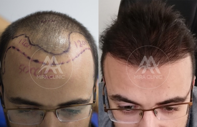 Mira Clinic reviews before and after picture